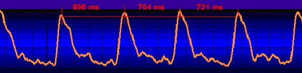 HRV - Grafik mit unterschiedlichen Herzschlaglängen